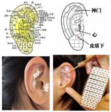 """《""""耳穴压豆""""方法治疗各种急慢性皮肤病》"""