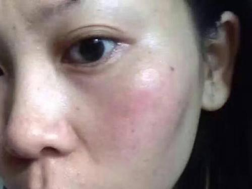 《冬季易发的面部冬季皮炎,其实不一定是过敏哦。》