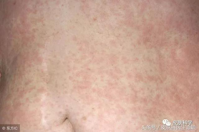 《运动后出现这种红斑?可能是胆碱能性荨麻疹!》